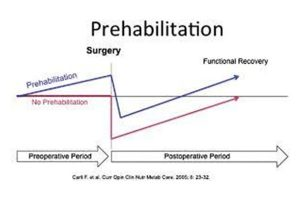prehabilitation