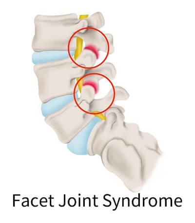 spine facet joint syndrome
