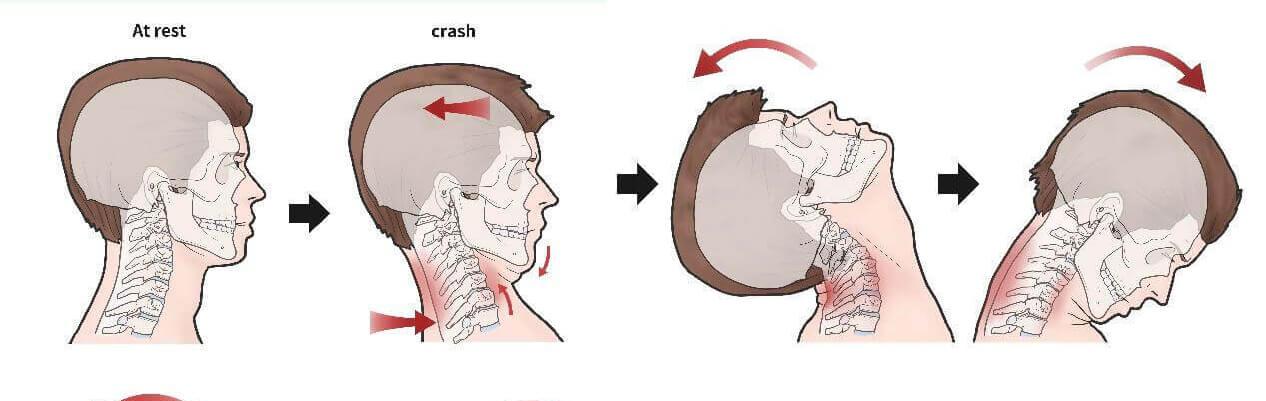 whiplash associated disorders injuries