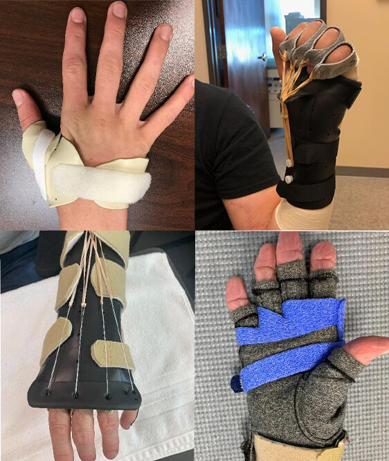 armworks hand finger injury procedures-therapy